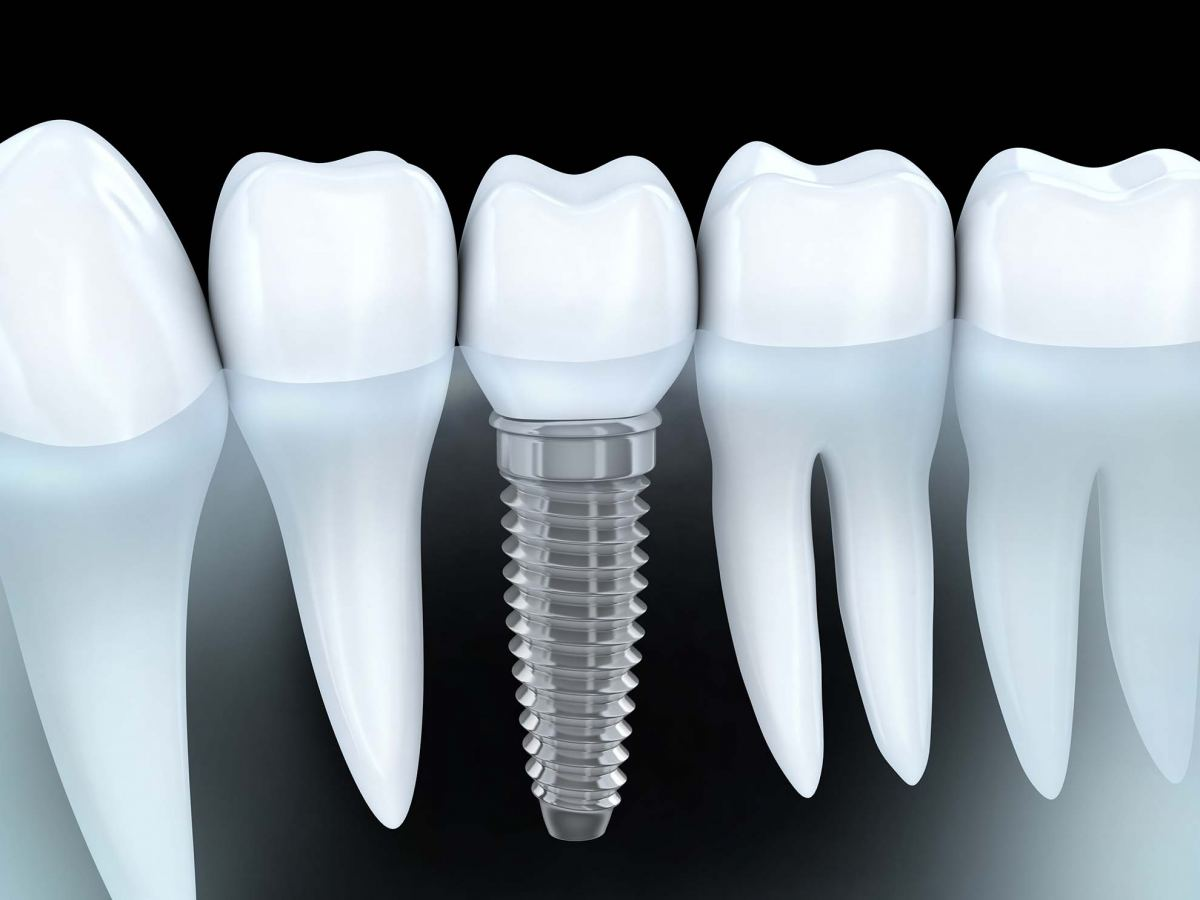 Dental Implants Blue Mountains