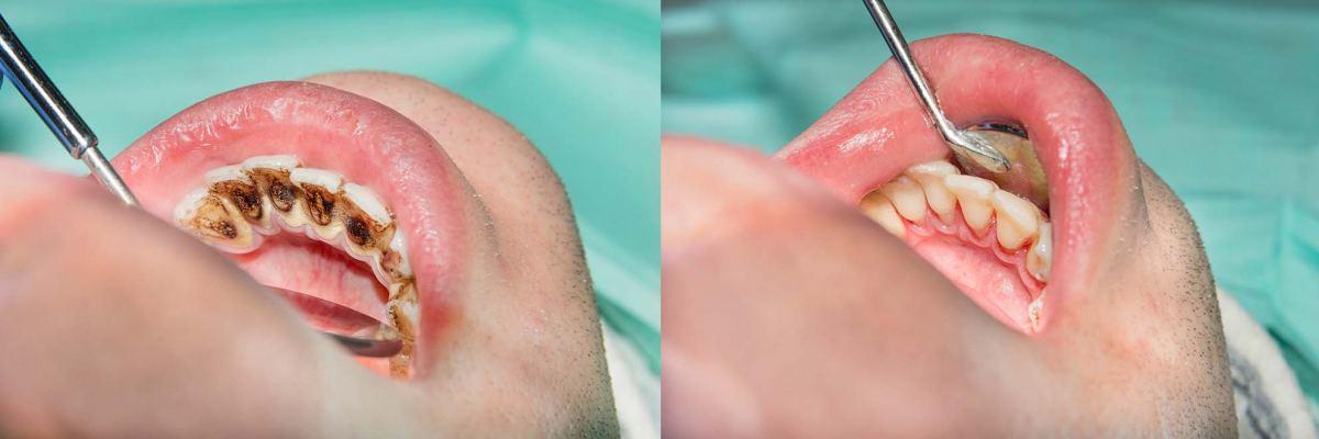 Gum Disease Blue Mountains