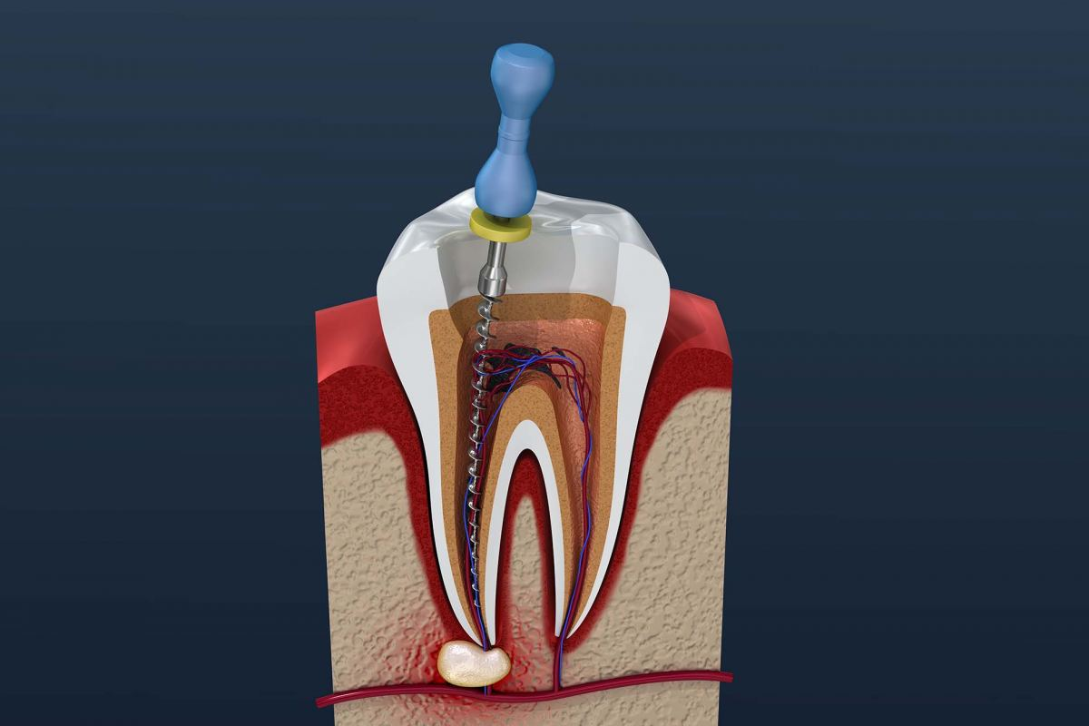 Root Canal Blue Mountains