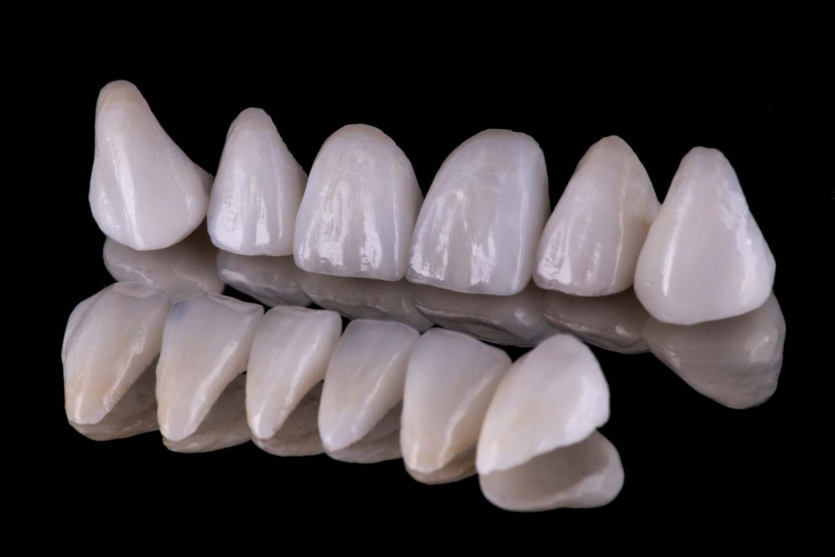 Teeth Veneers Blue Mountains