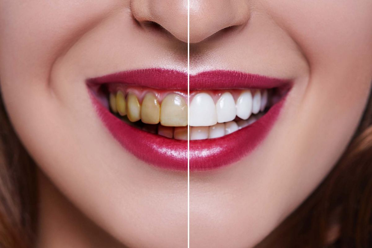 Teeth Whitening Blue Mountains